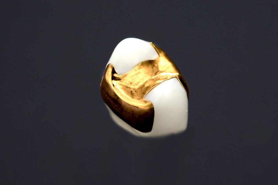 ゴールドインレー